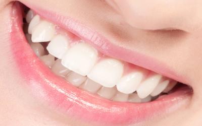 Mouth_Dental_Implants