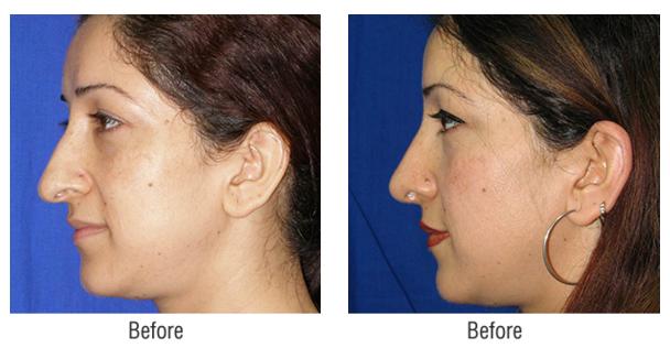 rhinoplasty-nosesurgery