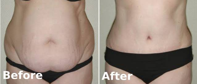 Tummy Tuck in mumbai