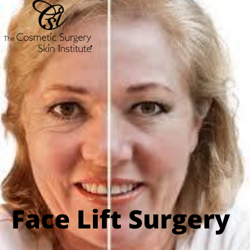 Face Lift Surgery Use